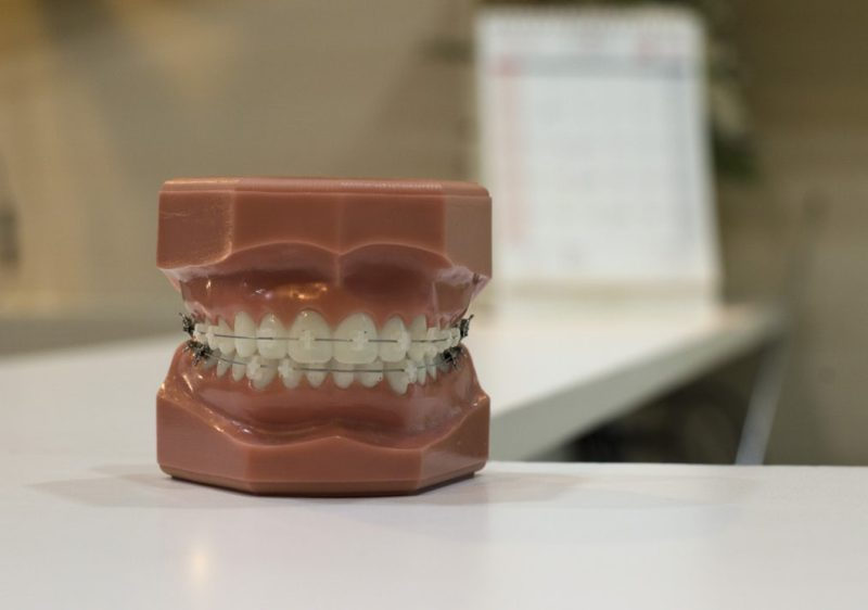 矯正歯科学会認定医アイキャッチ