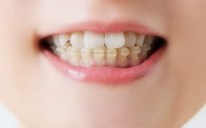歯列矯正と虫歯の相関関係について