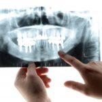 虫歯を調べる検査の概要