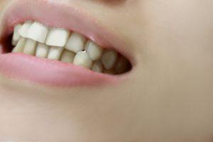 治療費用をおさえて短期間で歯列矯正を行うことができる部分矯正