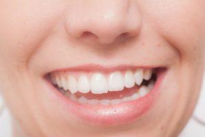 短期間で理想の歯並びになるインプラントによる歯列矯正