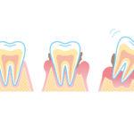 歯周病は痛い?気がつきにくい歯周病の症状と原因
