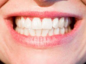 歯茎の腫れは歯周病のサイン
